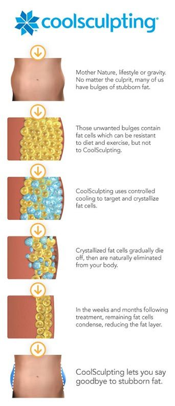 process of CoolSculpting® Illustration Chart
