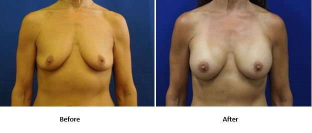 Breast augmentation before-and-after photos